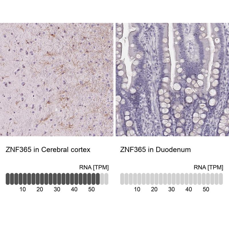 ZNF365 Antibody in Relative expression