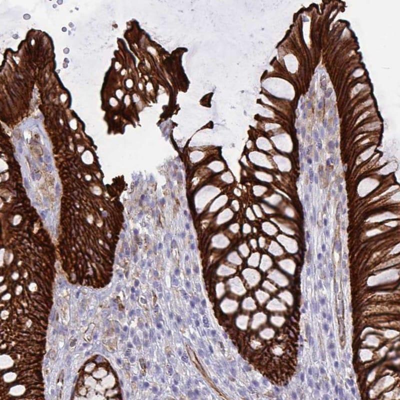 EPLIN Antibody in Immunohistochemistry (IHC)