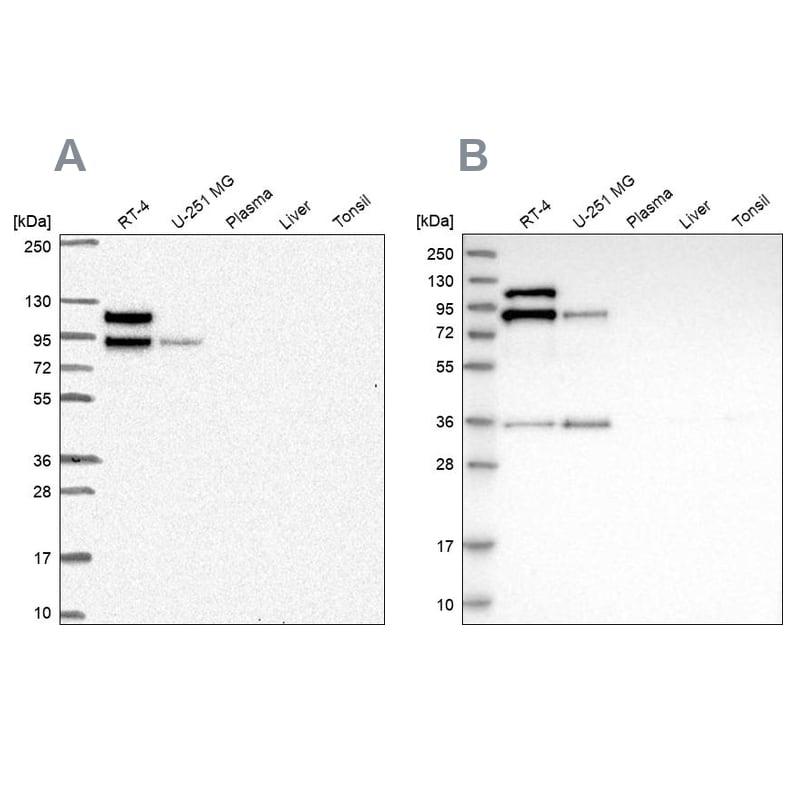 EPLIN Antibody in Western Blot (WB)