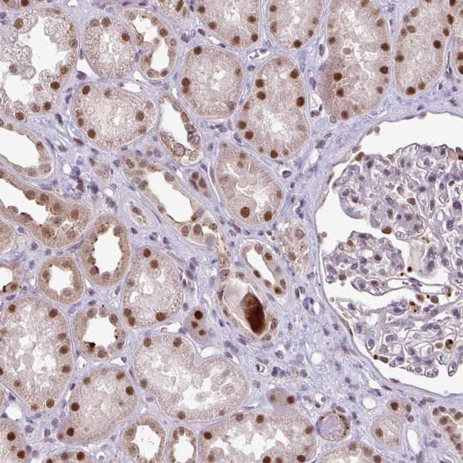 C19orf39 Antibody in Immunohistochemistry (IHC)