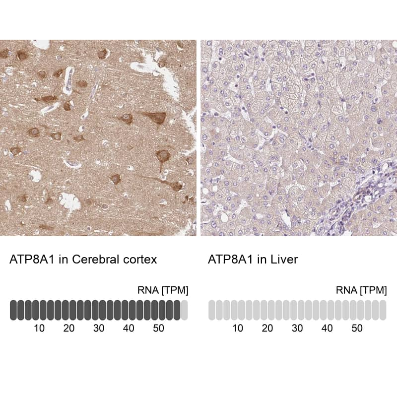 ATP8A1 Antibody in Relative expression
