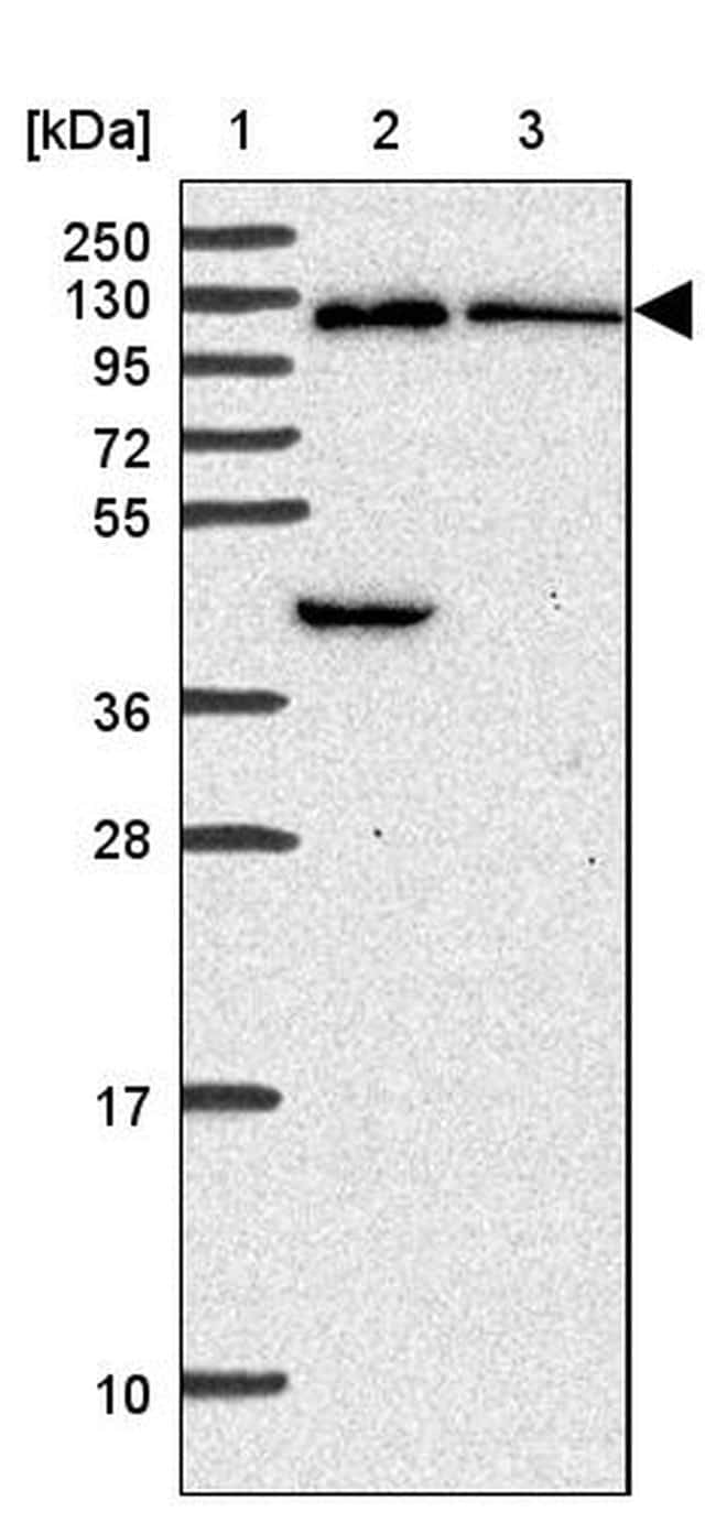 ORP7 Antibody in Western Blot (WB)