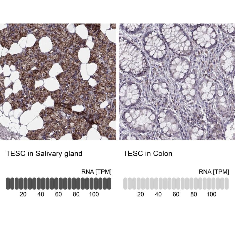 TESC Antibody in Immunohistochemistry (IHC)