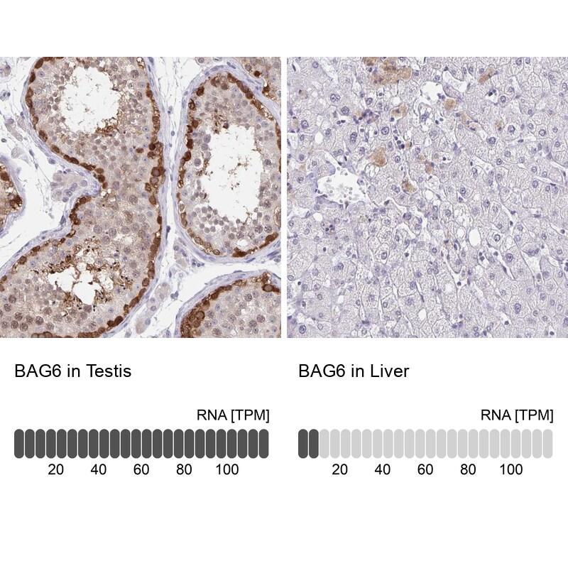 BAG6 Antibody in Immunohistochemistry (IHC)