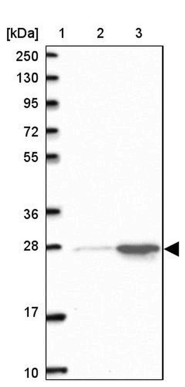 HMGB2 Antibody in Western Blot (WB)