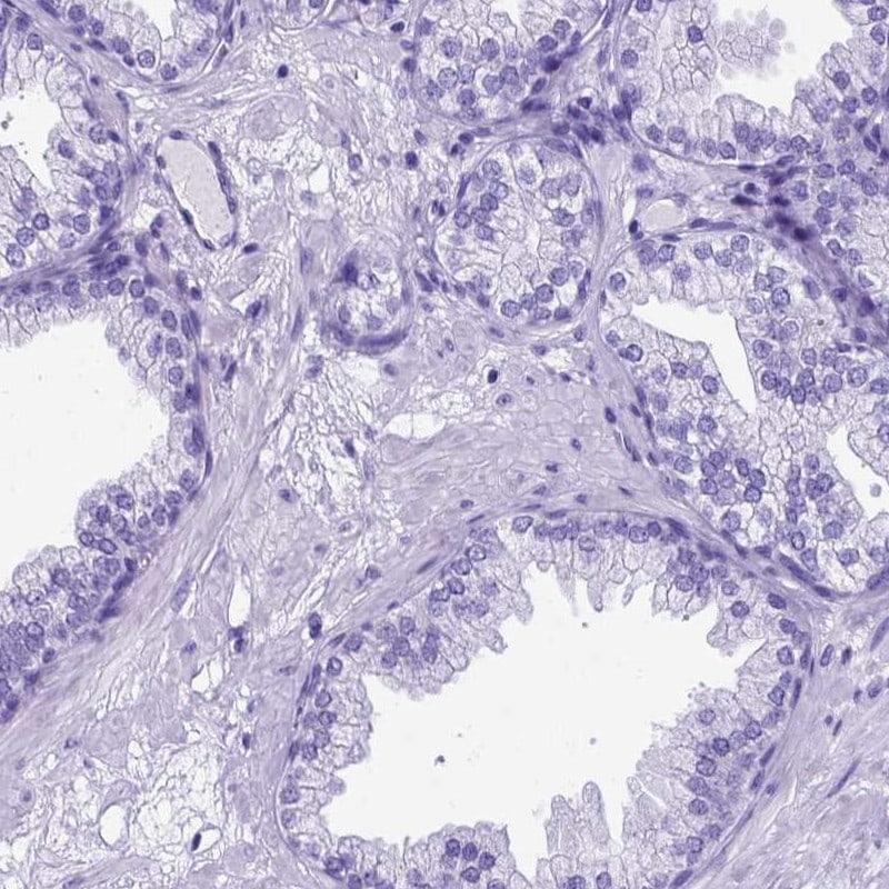 MEOX2 Antibody in Immunohistochemistry (IHC)