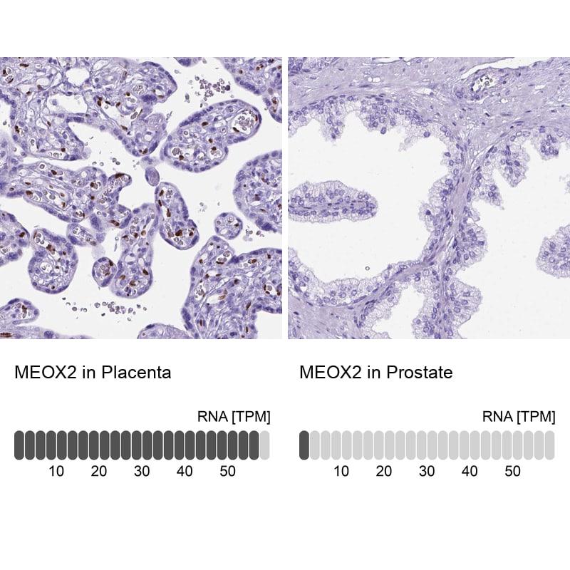 MEOX2 Antibody in Relative expression