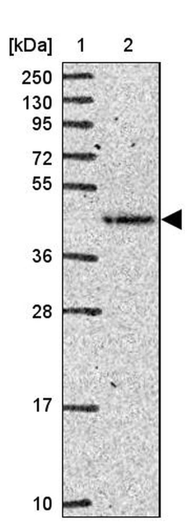 FUT10 Antibody in Western Blot (WB)