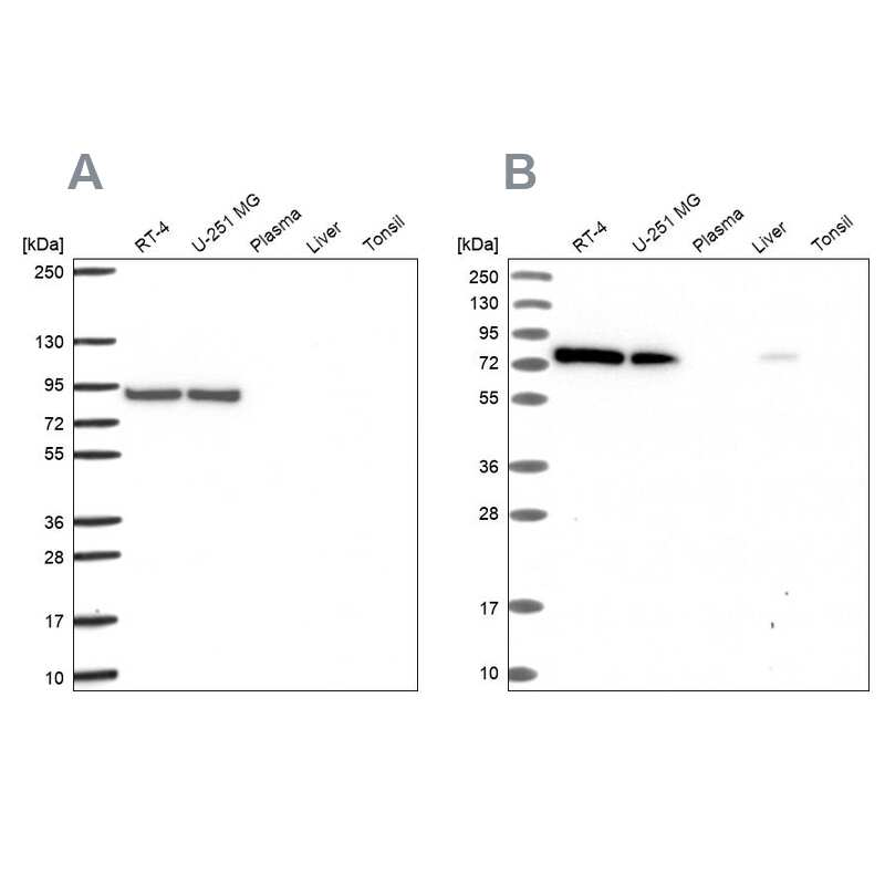 DYNC1I2 Antibody in Western Blot (WB)