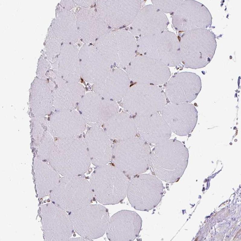 SLC39A7 Antibody in Immunohistochemistry (IHC)