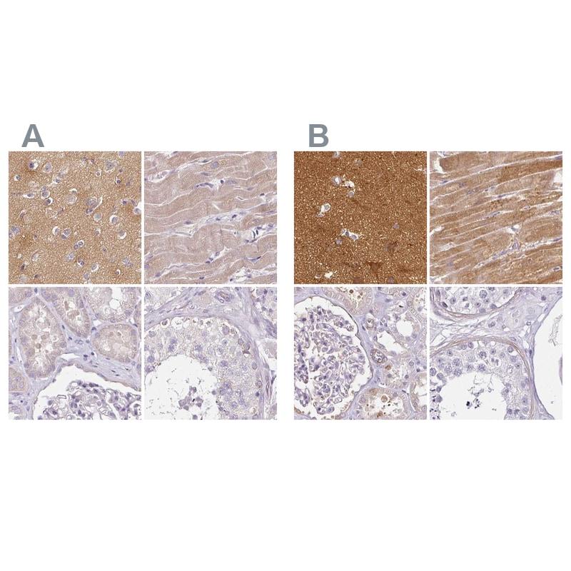 CAP2 Antibody in Immunohistochemistry (IHC)