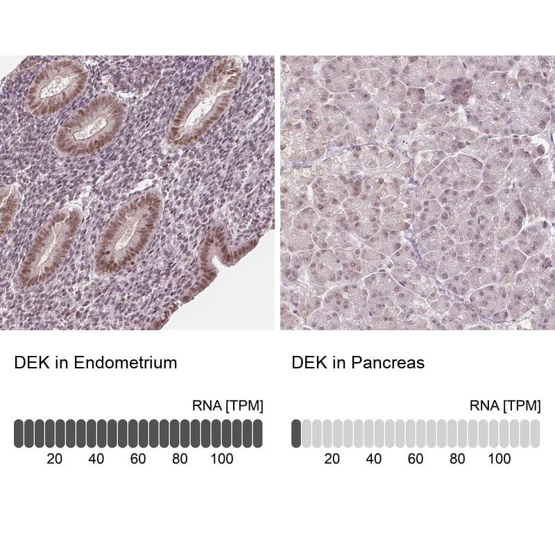 DEK Antibody in Relative expression
