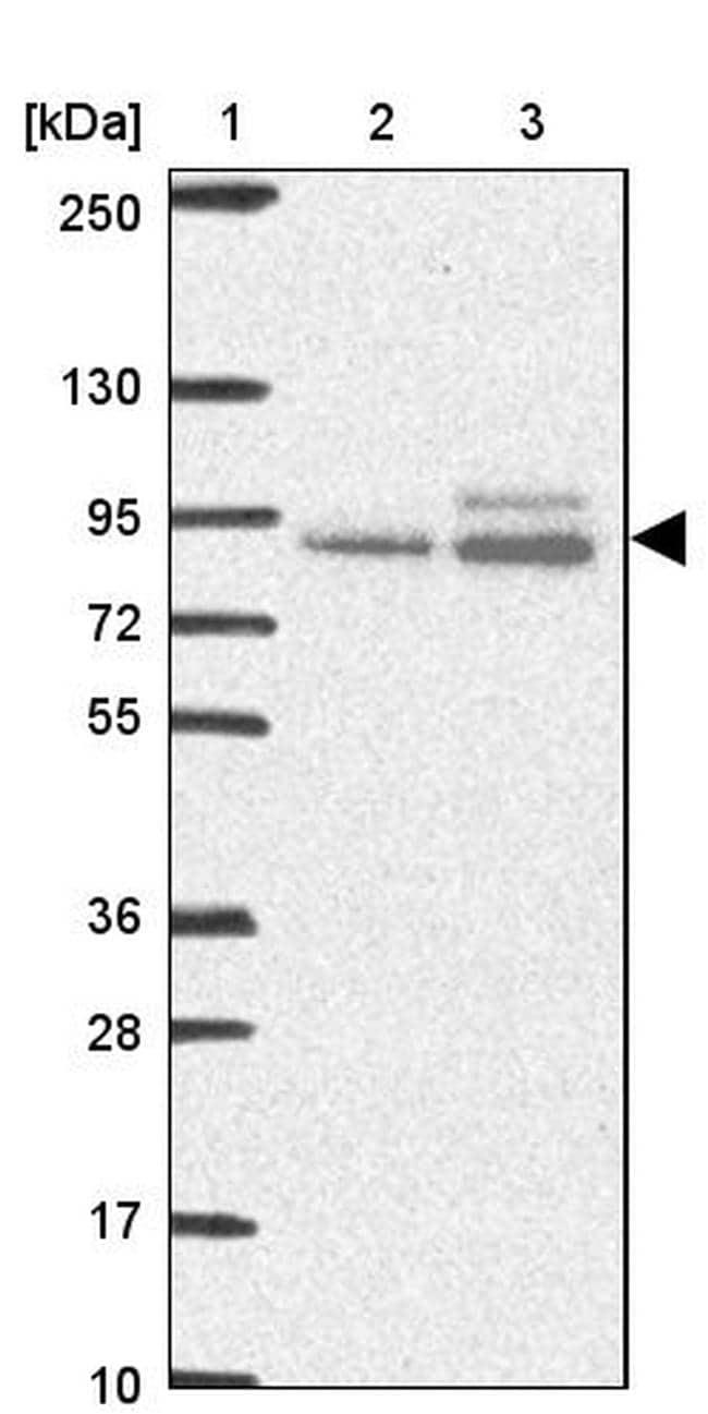 ABR Antibody in Western Blot (WB)