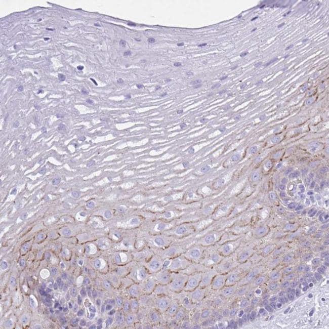 TMEM79 Antibody in Immunohistochemistry (IHC)