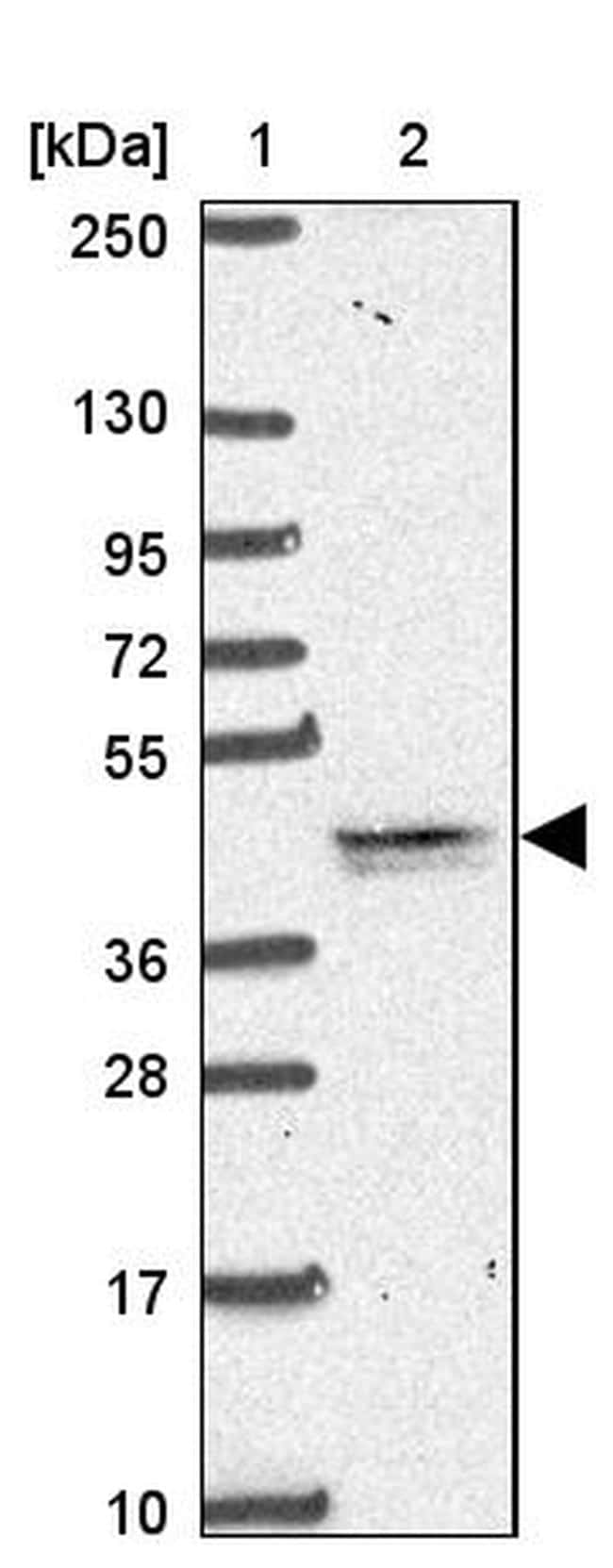 TMEM79 Antibody in Western Blot (WB)