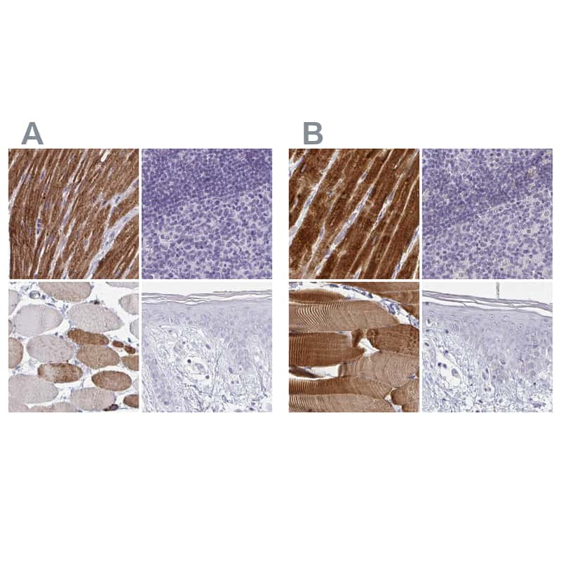 Calsequestrin 2 Antibody in Immunohistochemistry (IHC)