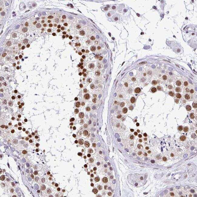 DR1 Antibody in Immunohistochemistry (IHC)