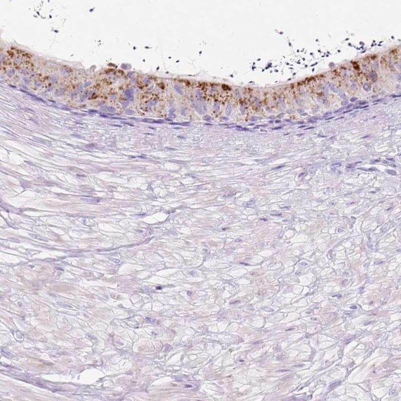 HEXB Antibody in Immunohistochemistry (IHC)
