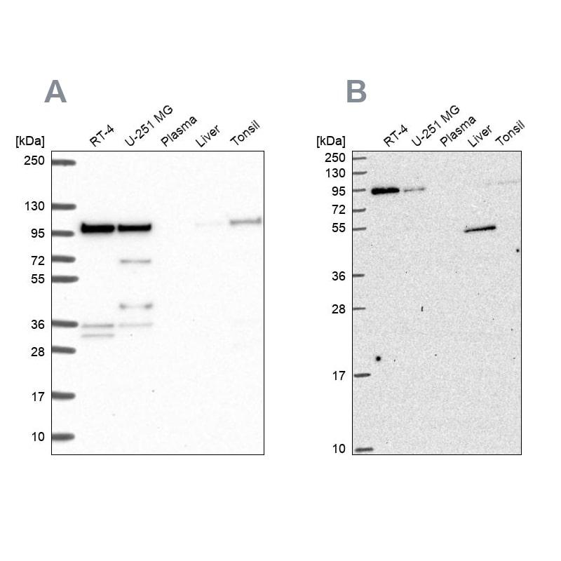 ZW10 Antibody in Western Blot (WB)