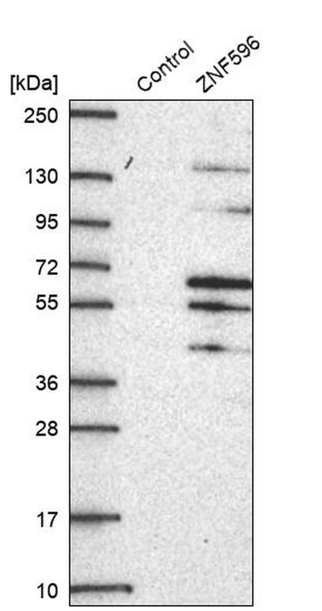 ZNF596 Antibody in Western Blot (WB)