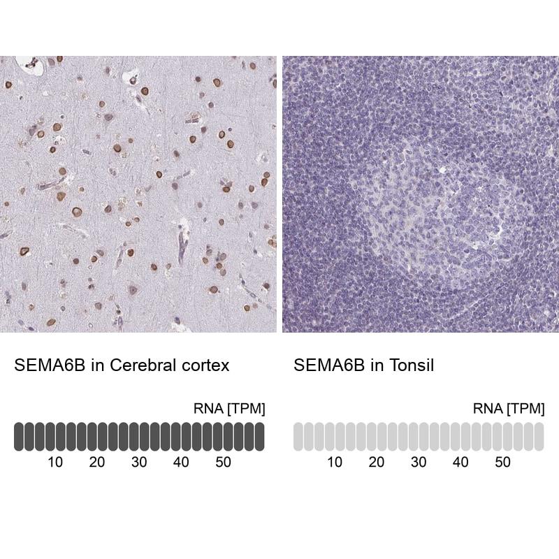 SEMA6B Antibody in Immunohistochemistry (IHC)