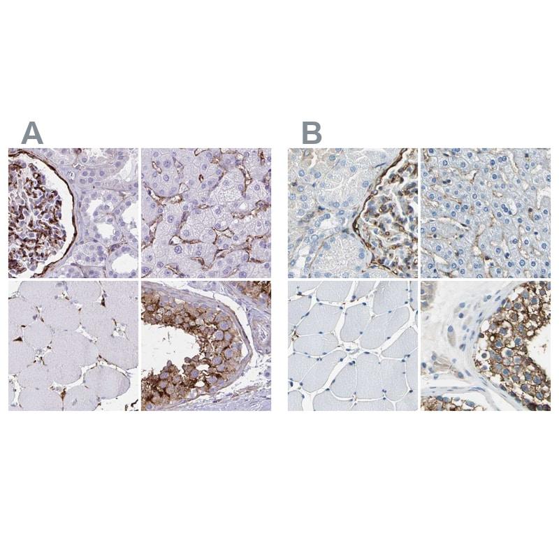 AKAP12 Antibody in Immunohistochemistry (IHC)