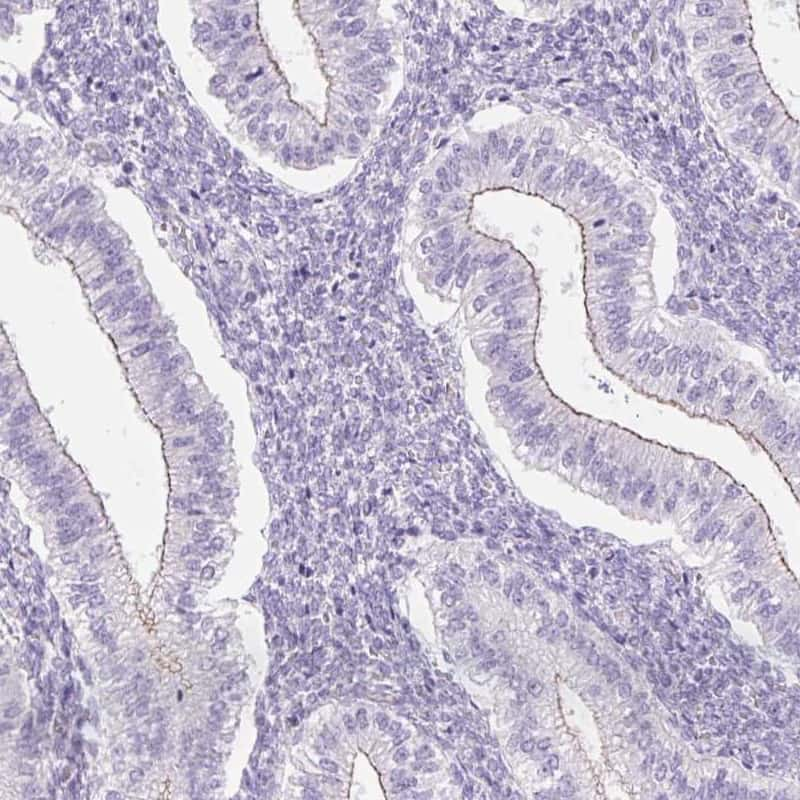 GRID2 Antibody in Immunohistochemistry (IHC)