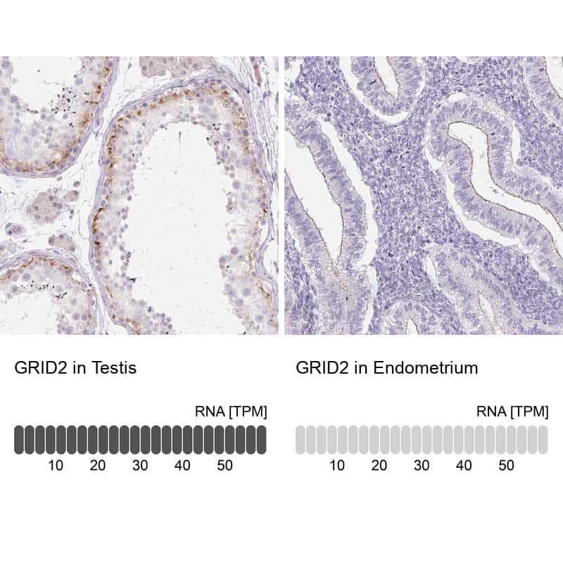 GRID2 Antibody in Relative expression