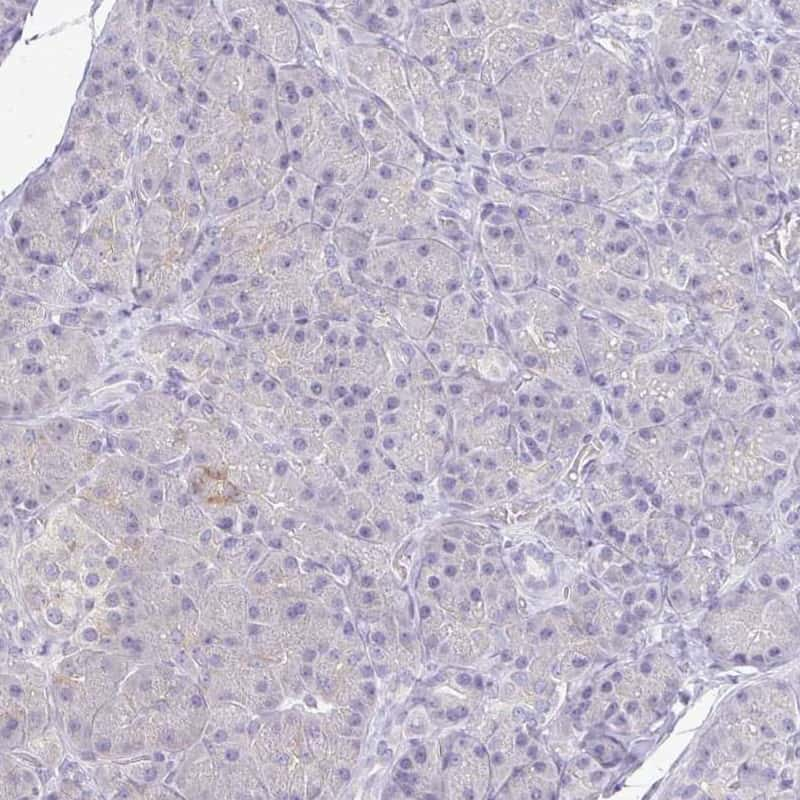 KIRREL3 Antibody in Immunohistochemistry (IHC)