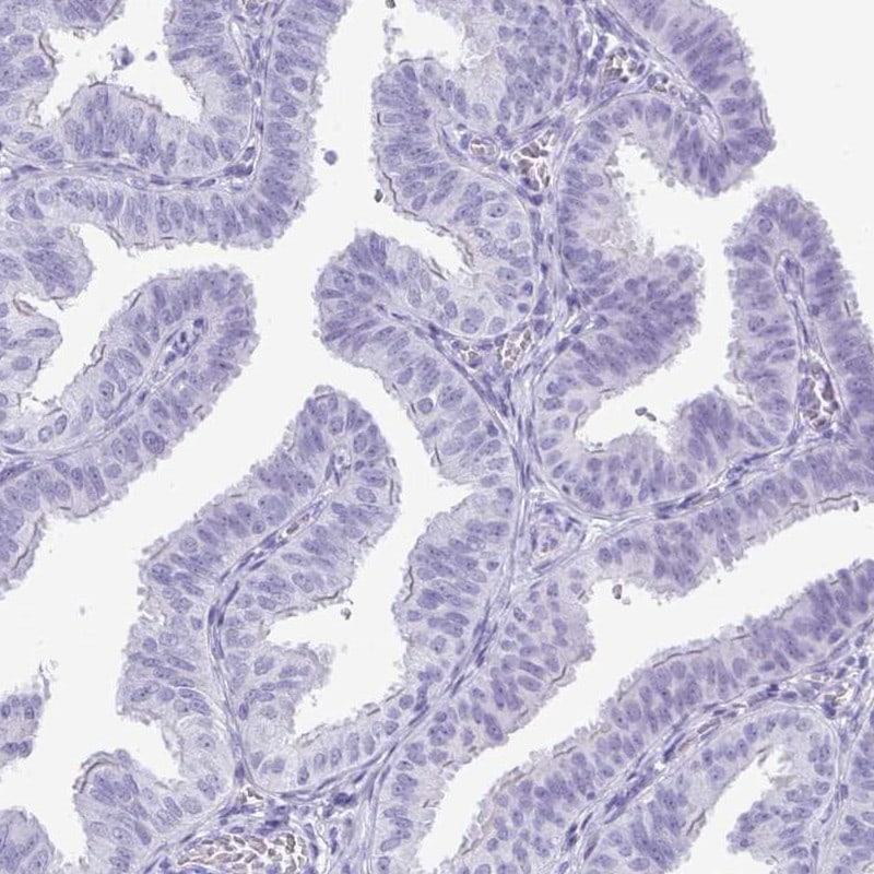 PRM2 Antibody in Immunohistochemistry (IHC)