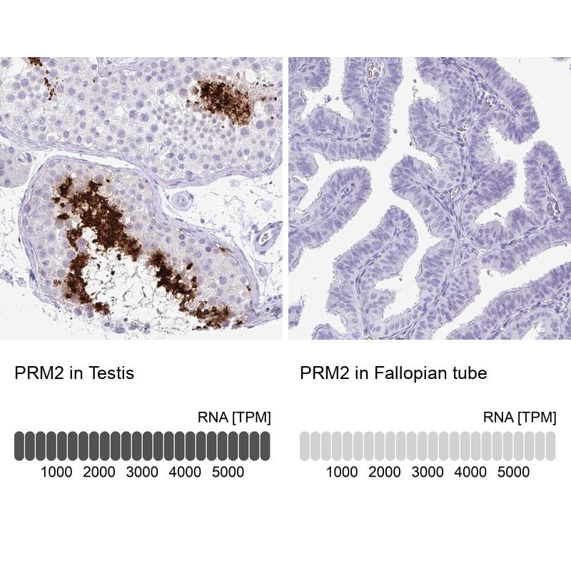 PRM2 Antibody