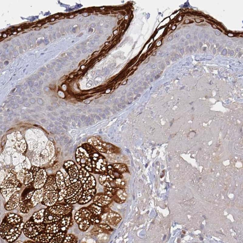 ELOVL1 Antibody in Immunohistochemistry (IHC)