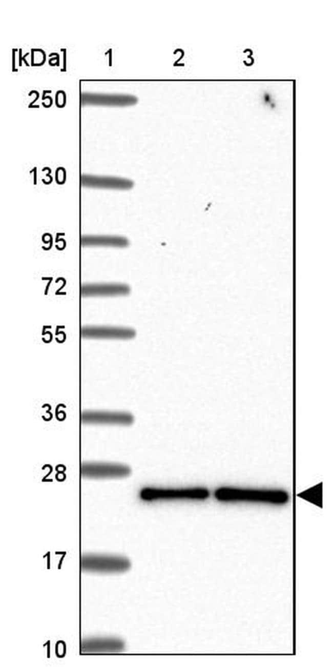 CCDC12 Antibody in Western Blot (WB)