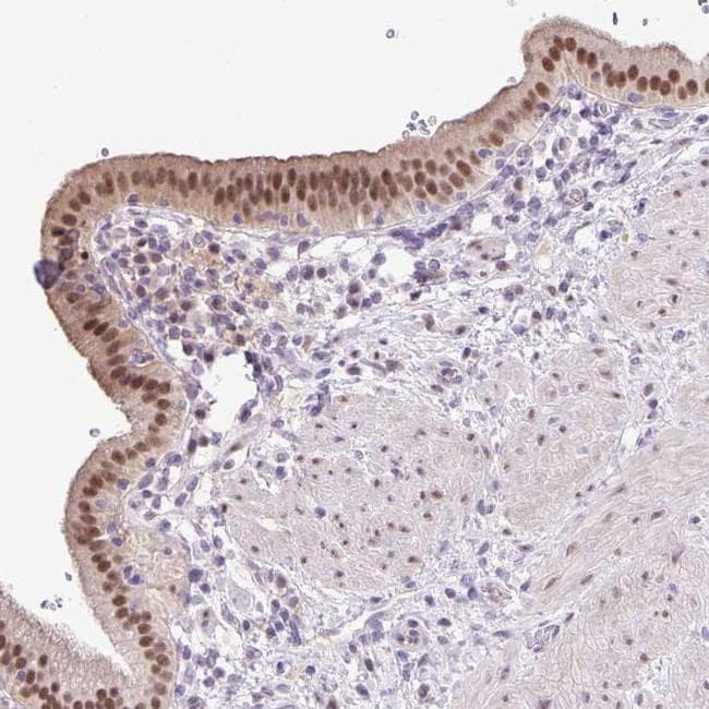 ONECUT2 Antibody in Immunohistochemistry (IHC)