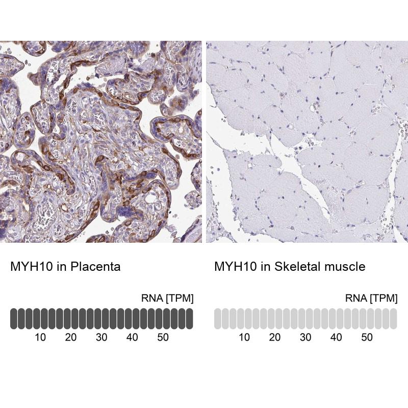 MYH10 Antibody in Immunohistochemistry (IHC)