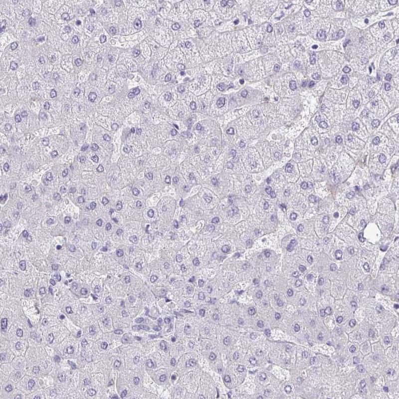 Adenylate Kinase 5 Antibody in Immunohistochemistry (IHC)