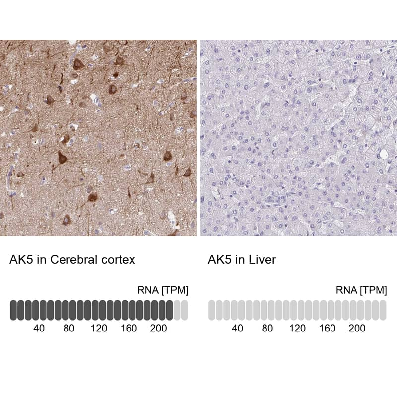 Adenylate Kinase 5 Antibody in Relative expression