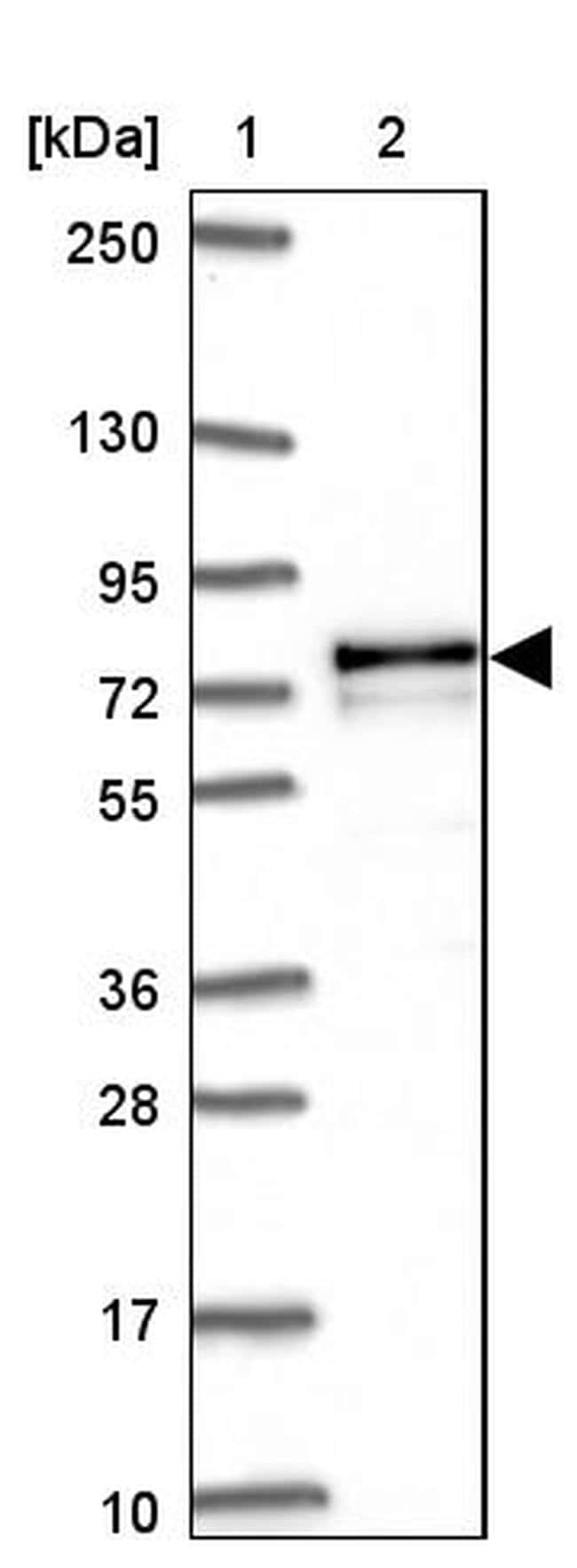 Adenylate Kinase 5 Antibody in Western Blot (WB)