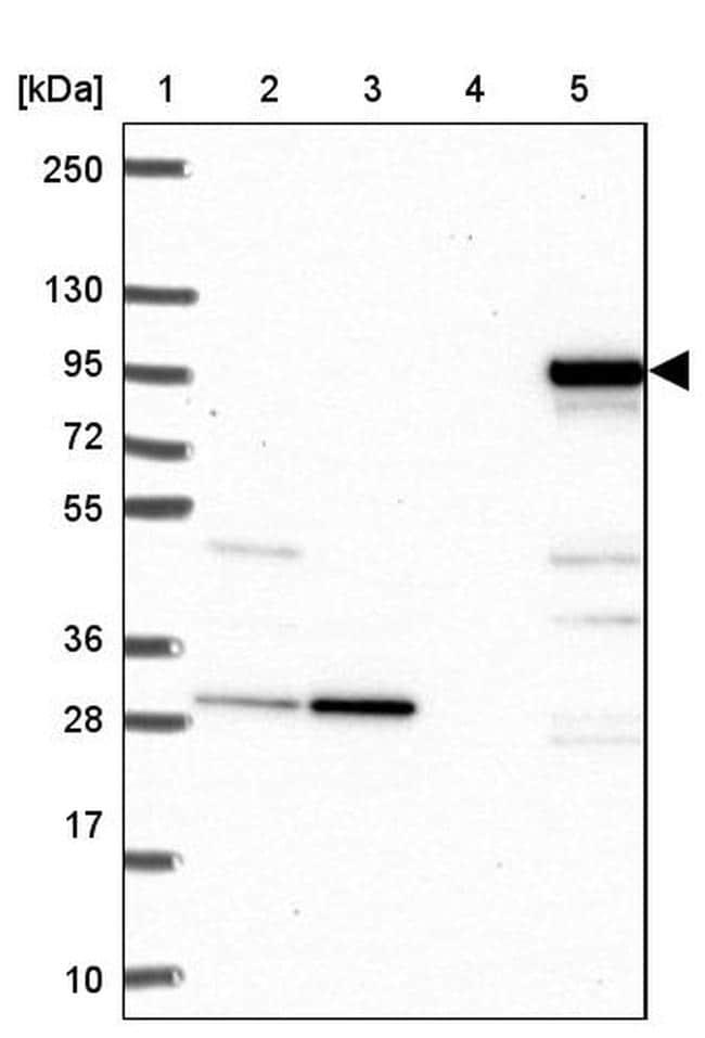 SARDH Antibody in Western Blot (WB)