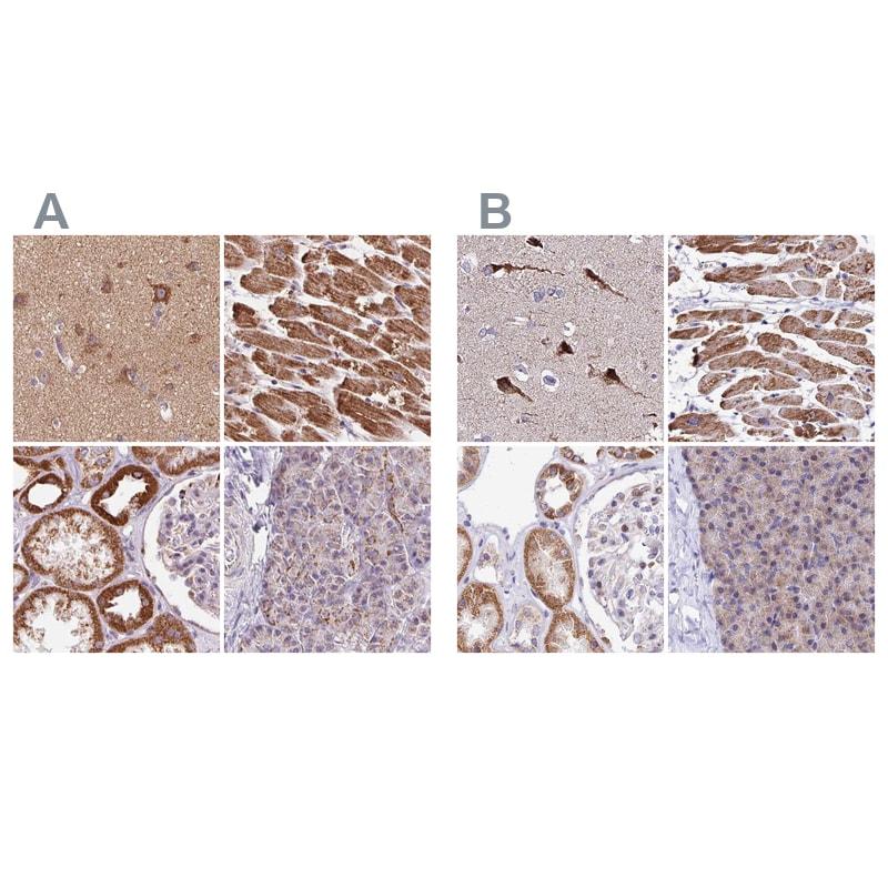 ATP Synthase B1 Antibody in Immunohistochemistry (IHC)