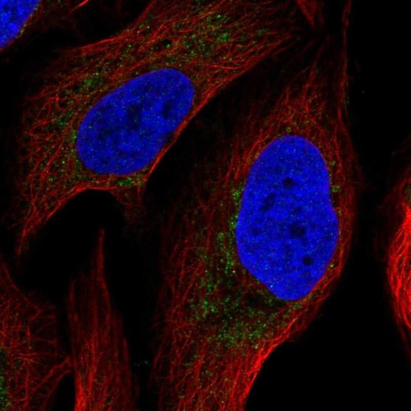ATP Synthase B1 Antibody in Immunofluorescence (IF)