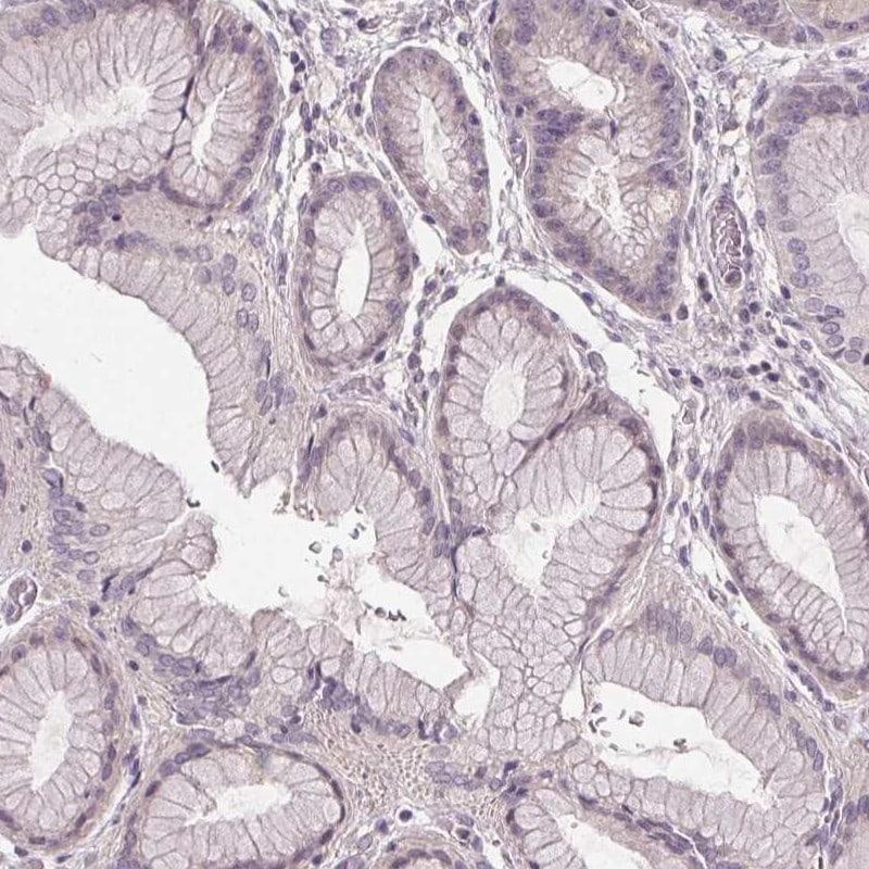 SLC26A2 Antibody in Immunohistochemistry (IHC)