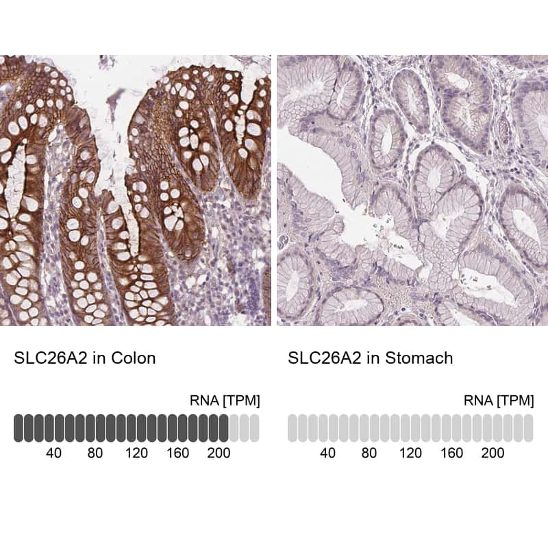 SLC26A2 Antibody in Relative expression