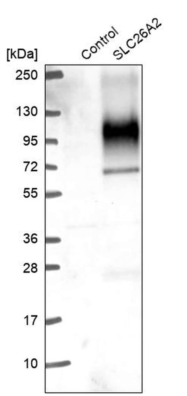 SLC26A2 Antibody in Western Blot (WB)