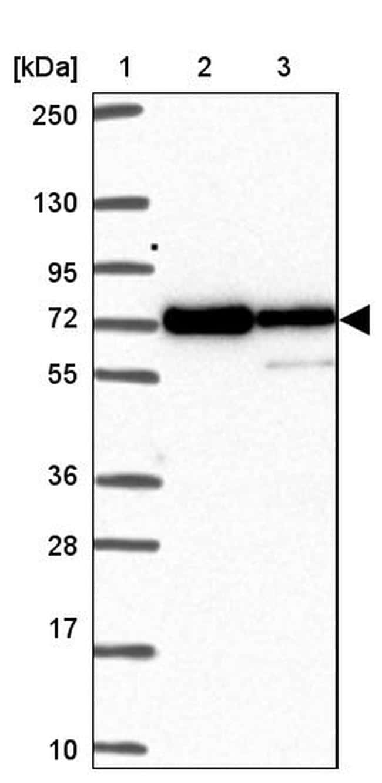 MOCS1 Antibody in Western Blot (WB)