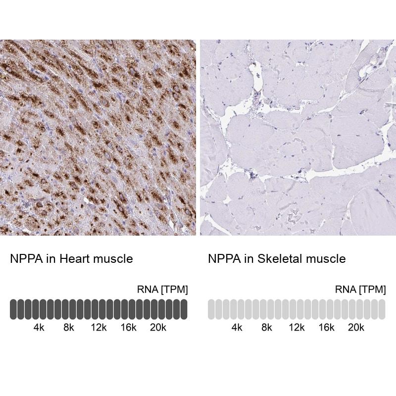 ANP Antibody in Immunohistochemistry (IHC)