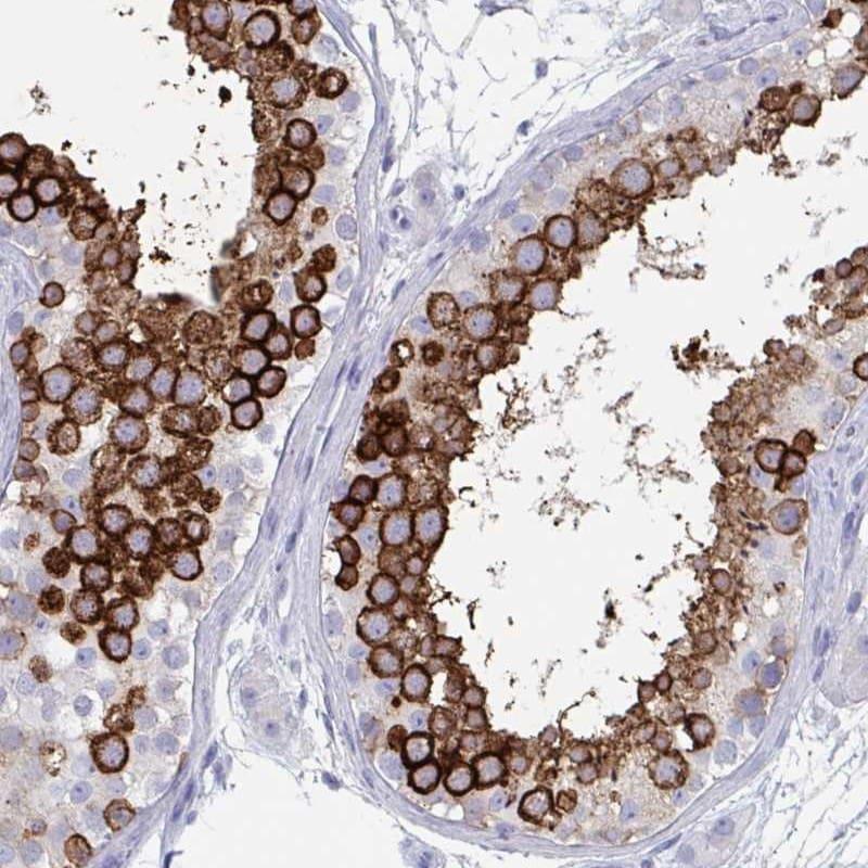 DPEP3 Antibody in Immunohistochemistry (IHC)