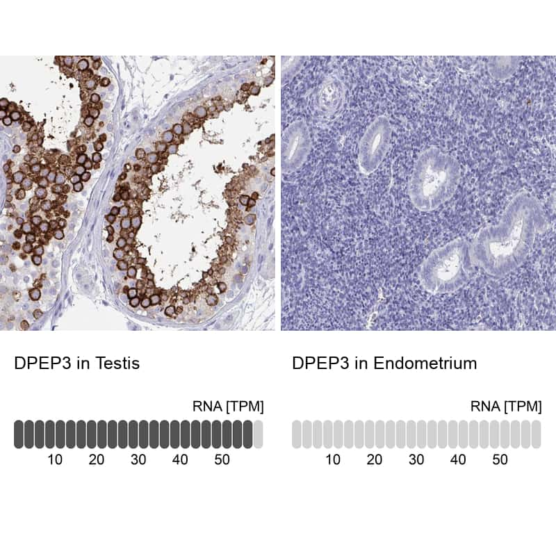 DPEP3 Antibody in Relative expression