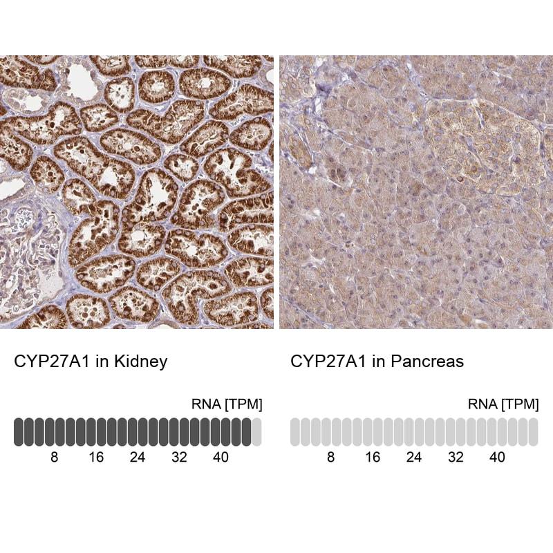 CYP27A1 Antibody in Immunohistochemistry (IHC)