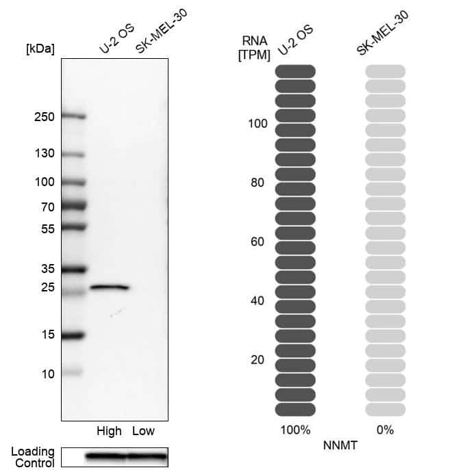 NNMT Antibody in Relative expression